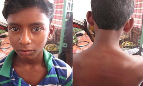 দুর্গাপুরে ছাত্রকে পিটিয়ে হাসপাতালে পাঠালেন প্রধান শিক্ষক