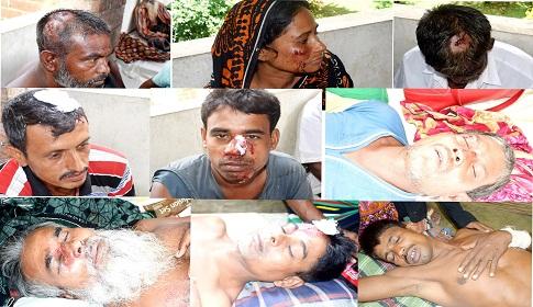 মহম্মদপুরে দুই দল গ্রামবাসীর সংঘর্ষ : নারীসহ আহত ৩০