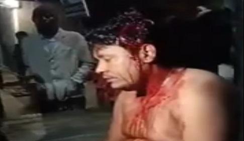 মোংলায় চাঁদার দাবিতে বিদেশী জাহাজে খাদ্য সরবরাহকারীকে কুপিয়ে আহত