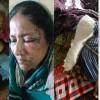 নোয়াখালীতে প্রতিপক্ষের হামলায় নারীসহ আহত ৫