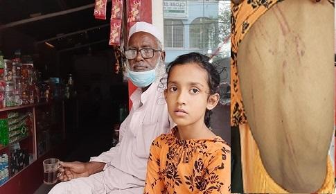 পড়া না পারায় মাদ্রাসার ছাত্রীকে পিটিয়ে আহত করলো শিক্ষক